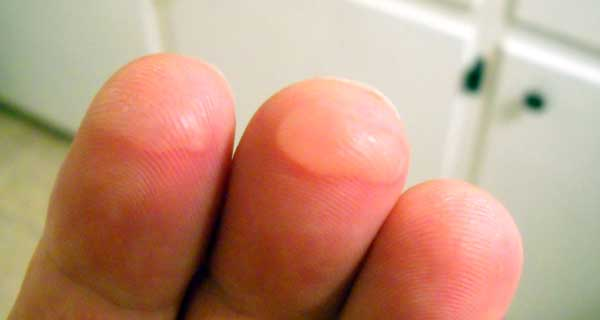 Guitar fingers blister