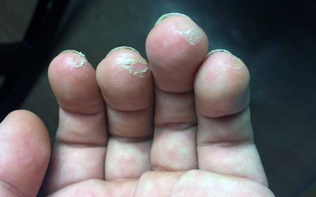 Guitar sore fingers